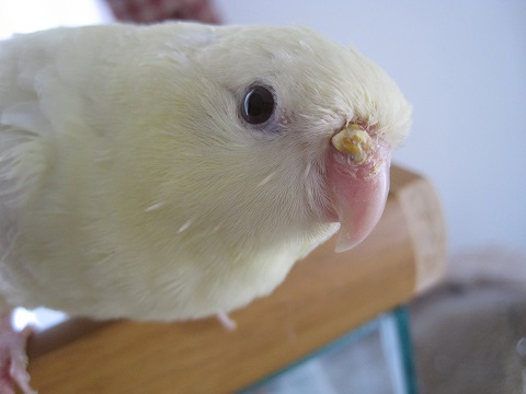 20110124 チロル鼻石症②