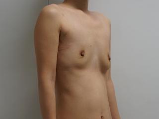 07除去術後1ヶ月