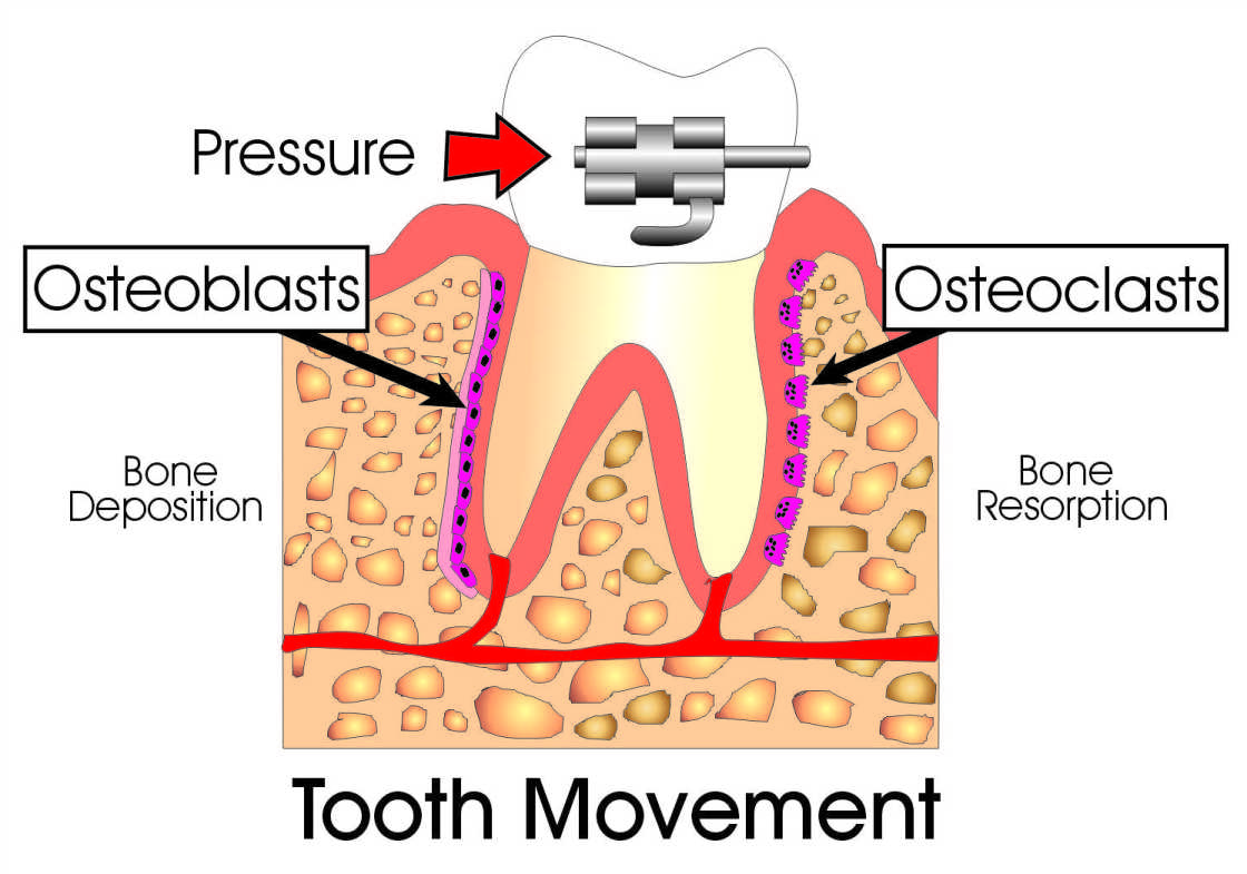 Tooth-Movement.jpg
