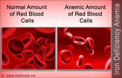 iron-deficiency-anemia.jpg