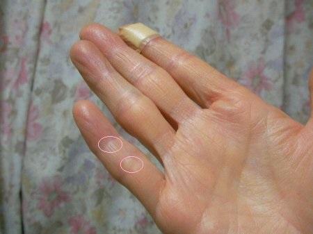 20160317右小指レントゲン日①-2