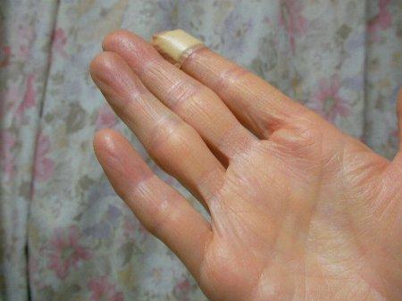 20160317右小指レントゲン日①-1