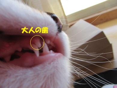 大人の歯!