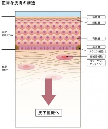 struct2.jpg