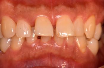 初診時前歯部