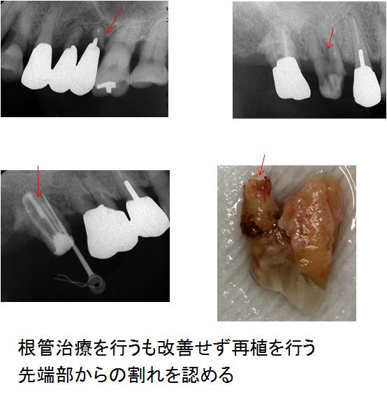 左上奥、右上奥2本計3本の歯根破折