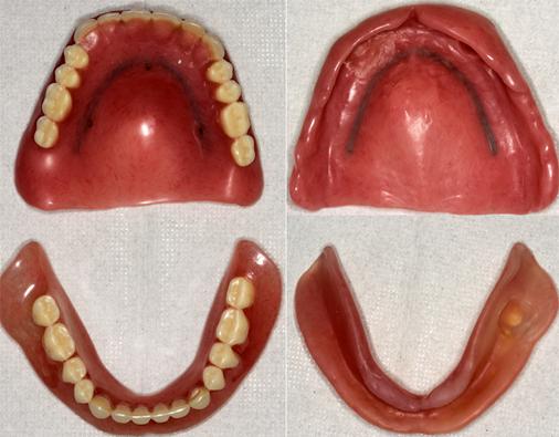 Kさんの上下総義歯