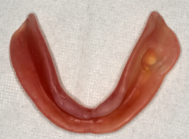 下顎コンフォート義歯