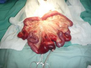 腸重積 術前