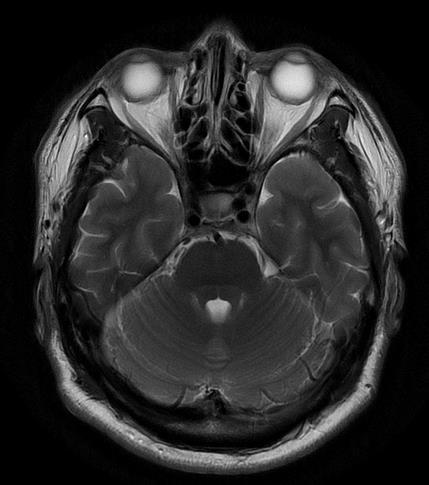 脳検査 MRI