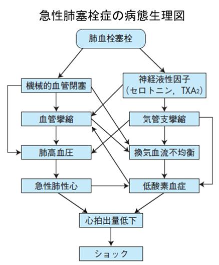 急性肺塞栓症の病態生理図