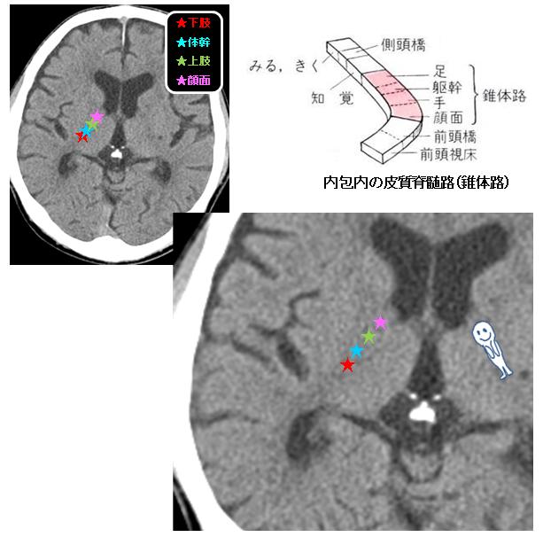 皮質画脊髄路 モンロー孔レベル