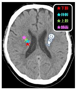 皮質画脊髄路 側脳室天井レベル