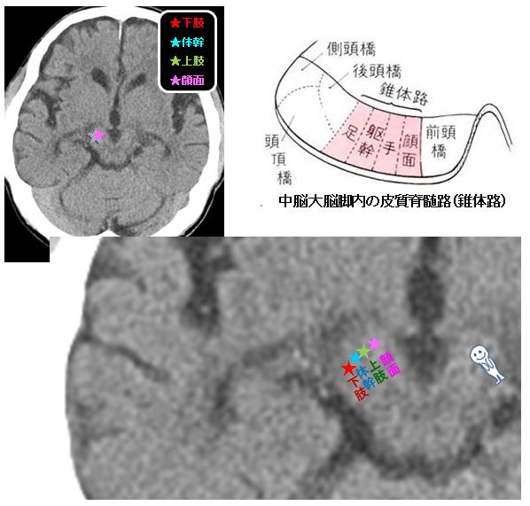 皮質画脊髄路 中脳レベル