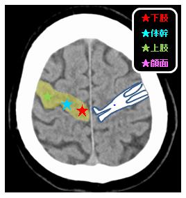 皮質画脊髄路 皮質レベル