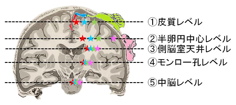 皮質脊髄路の水平断面の体部位局在の位置