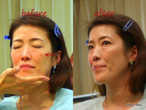 皮膚科医が採用する敏感肌のためのスキンケア