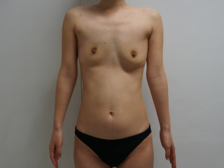 05除去術後1ヶ月